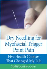 Dry Needling for Myofascial Trigger Point Pain